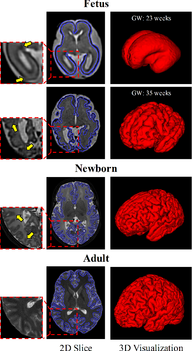 Figure 1 for A Deep Attentive Convolutional Neural Network for Automatic Cortical Plate Segmentation in Fetal MRI