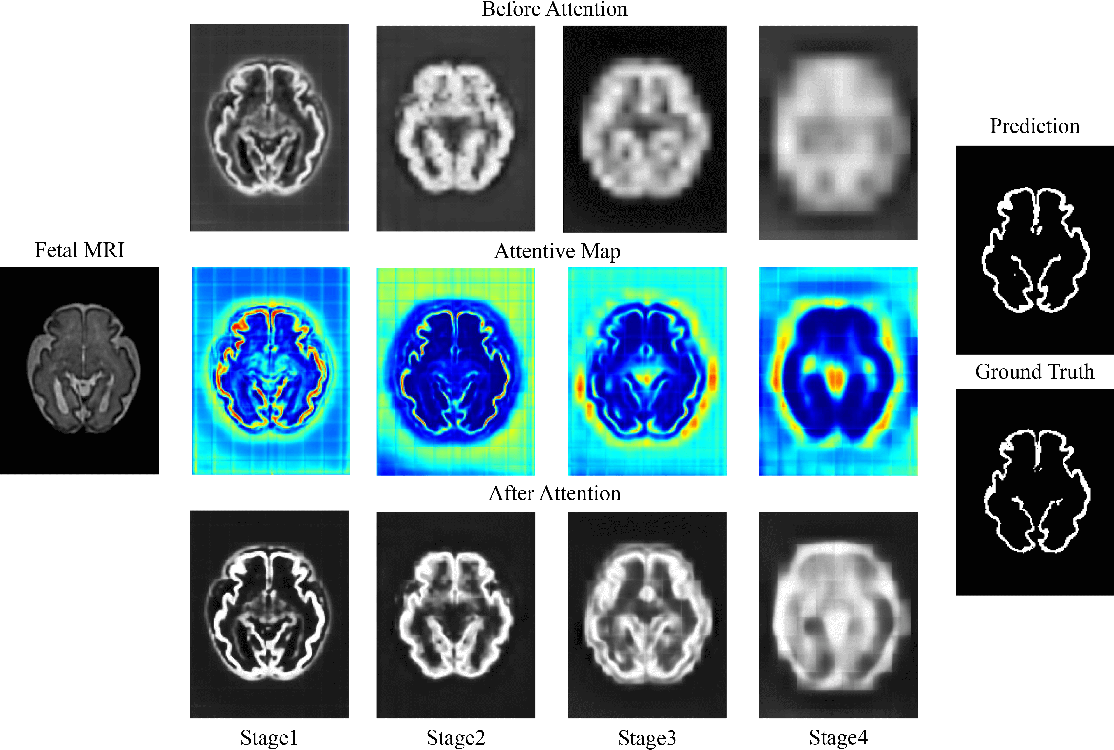 Figure 4 for A Deep Attentive Convolutional Neural Network for Automatic Cortical Plate Segmentation in Fetal MRI
