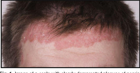Figure 1 From Topical Treatments For Scalp Psoriasis Semantic Scholar