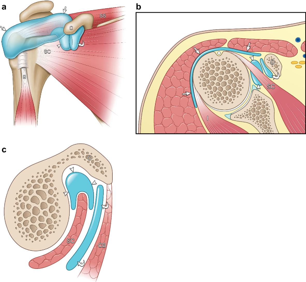 Ultrasound evaluation of bursae: anatomy and pathological ...