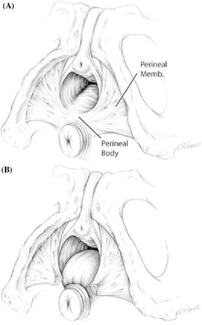 Figure 11 from Functional anatomy of the female pelvic floor ...