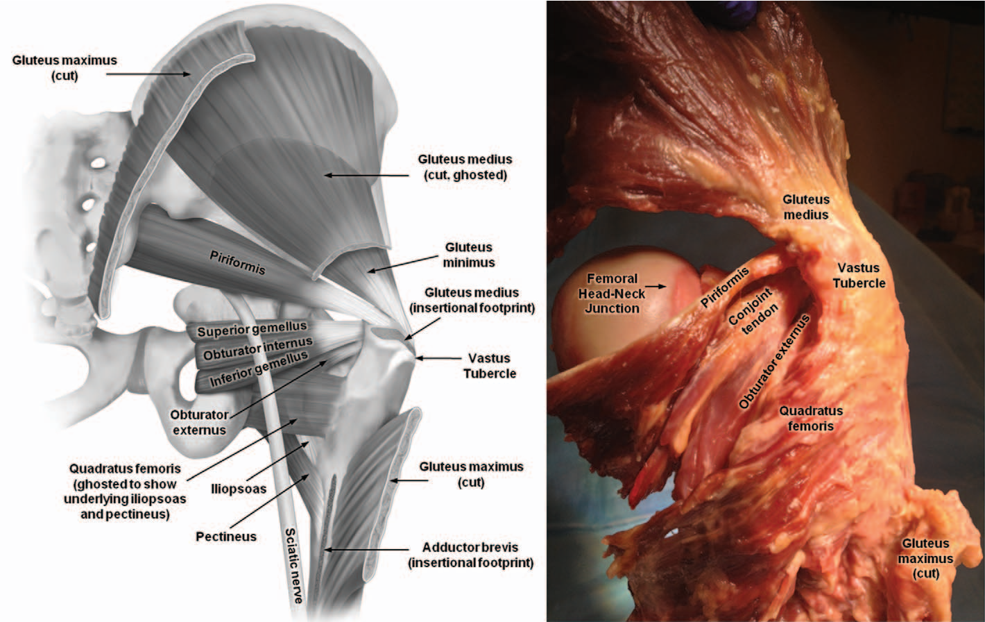 Surgically Relevant Bony and Soft Tissue Anatomy of the Proximal ...