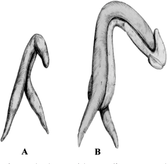 Figure 3 From Anatomy And Physiology Of The Clitoris Vestibular