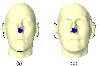Fig. 7. Results in MPI set. The black line connecting to the black point is the detected nose ridge.
