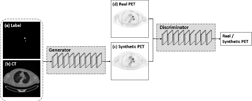 Figure 1 for Synthesis of Positron Emission Tomography (PET) Images via Multi-channel Generative Adversarial Networks (GANs)