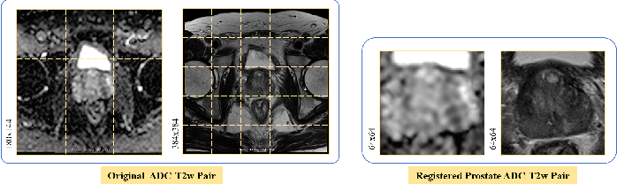 Figure 4 for Semi-supervised mp-MRI Data Synthesis with StitchLayer and Auxiliary Distance Maximization