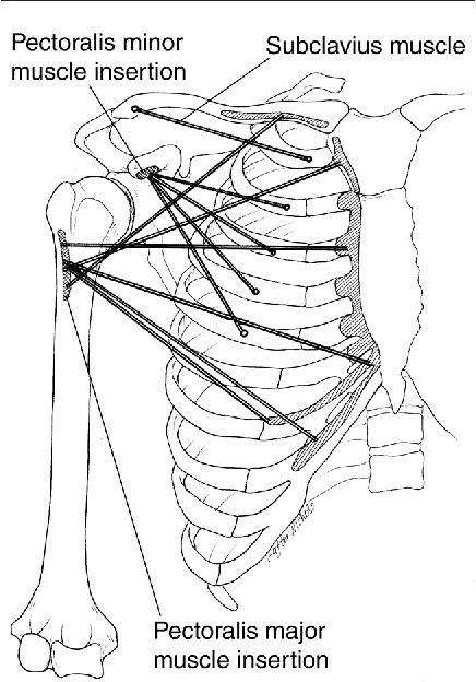 Figure 1 From Pectoralis Major Muscle Injuries Evaluation And