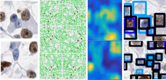 Figure 1 for Multi-scale Deep Learning Architecture for Nucleus Detection in Renal Cell Carcinoma Microscopy Image