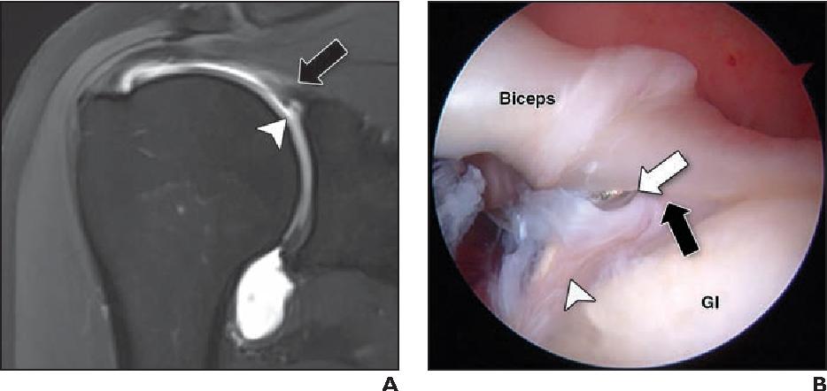 MRI-Arthroscopy Correlation for Shoulder Anatomy and Pathology: A ...