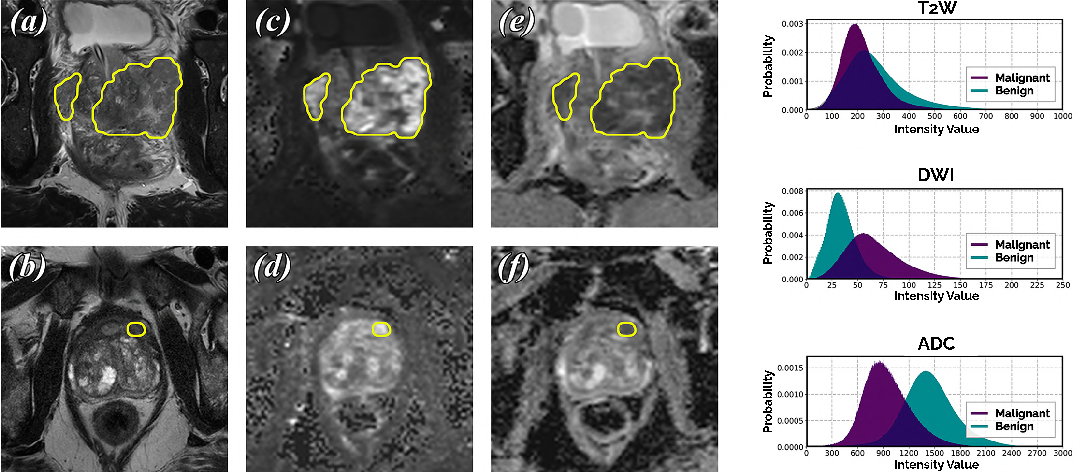 Figure 1 for End-to-end Prostate Cancer Detection in bpMRI via 3D CNNs: Effect of Attention Mechanisms, Clinical Priori and Decoupled False Positive Reduction