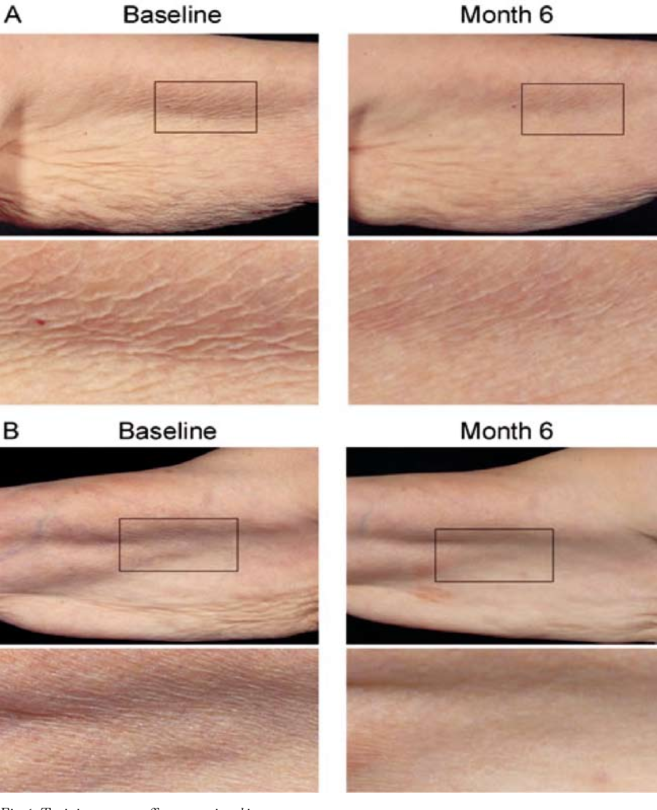 Figure 1 from Local therapy as basic anti-aging prevention