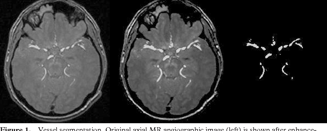Figure 1 from Informatics in Radiology (infoRAD): three-dimensional ...