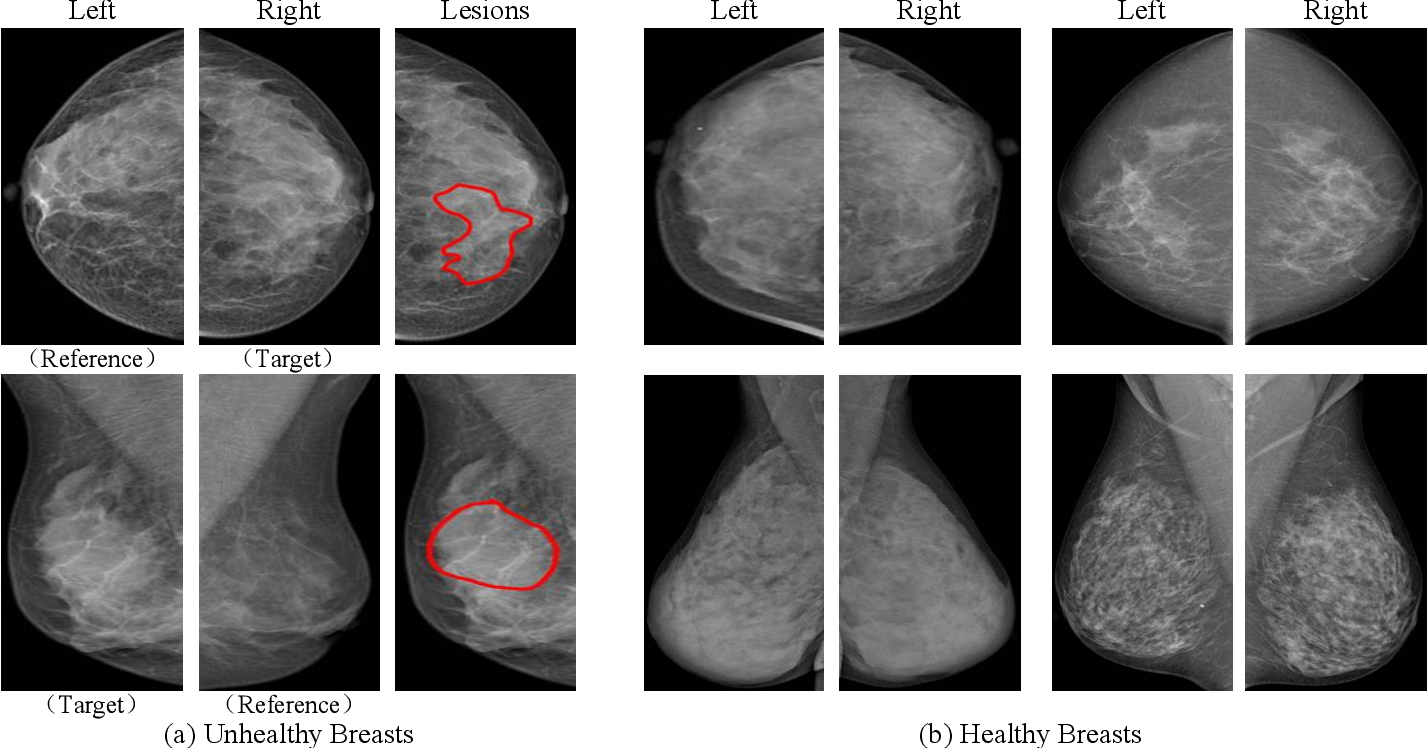 Figure 1 for Bilateral Asymmetry Guided Counterfactual Generating Network for Mammogram Classification