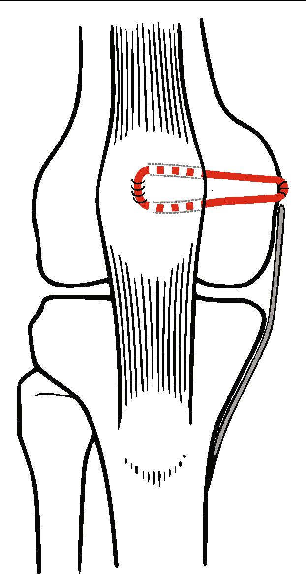 Großzügig Erweiterung Definition Anatomie Zeitgenössisch - Anatomie ...