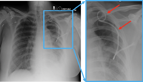 Figure 1 for Pneumothorax and chest tube classification on chest x-rays for detection of missed pneumothorax