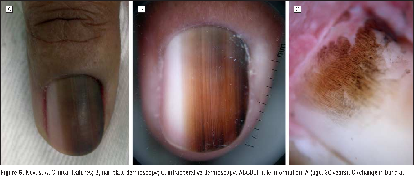 Figure 6 from Dermatologists\' accuracy in early diagnosis of ...