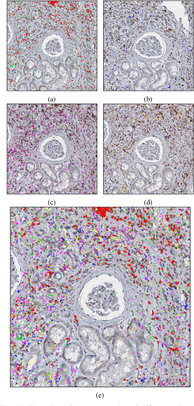 Figure 2 for An automatic framework to study the tissue micro-environment of renal glomeruli in differently stained consecutive digital whole slide images