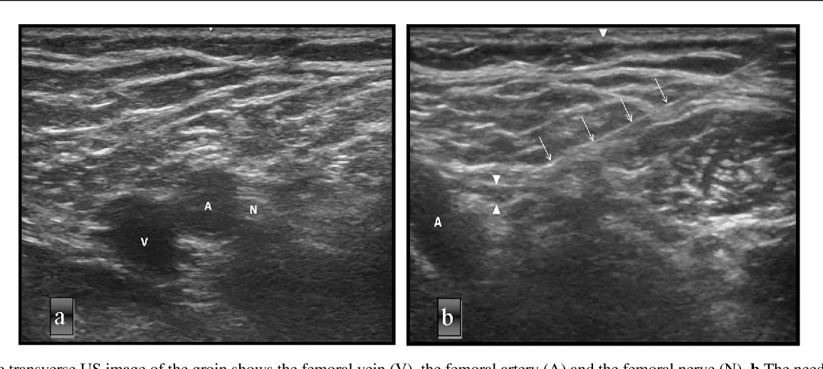 The Short Term Effect Of Ultrasound And Peripheral Nerve Stimulator