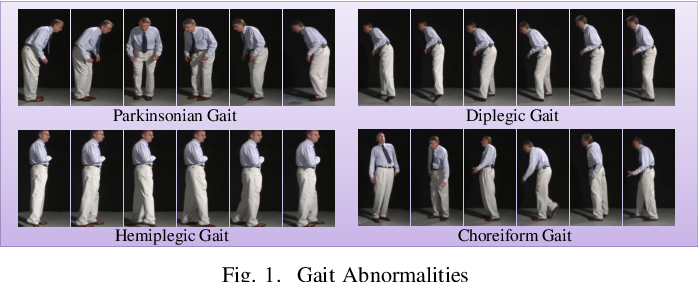 Figure 1 for Detection of Gait Abnormalities caused by Neurological Disorders