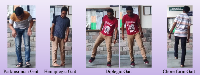 Figure 4 for Detection of Gait Abnormalities caused by Neurological Disorders