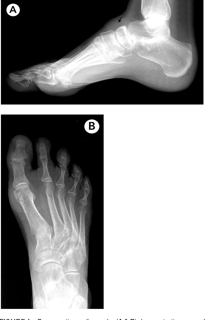 Hemorrhagic ganglion of the tibialis anterior tendon: report of an ...