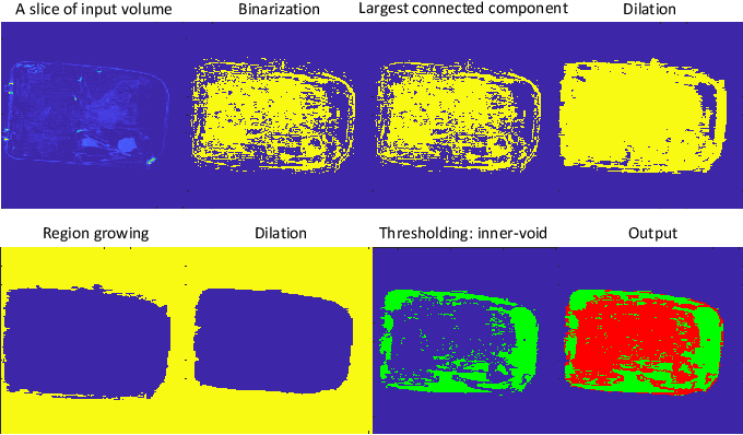 Figure 3 for A Reference Architecture for Plausible Threat Image Projection (TIP) Within 3D X-ray Computed Tomography Volumes