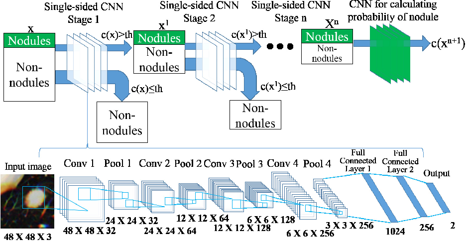 Figure 2 for Multi-stage Neural Networks with Single-sided Classifiers for False Positive Reduction and its Evaluation using Lung X-ray CT Images