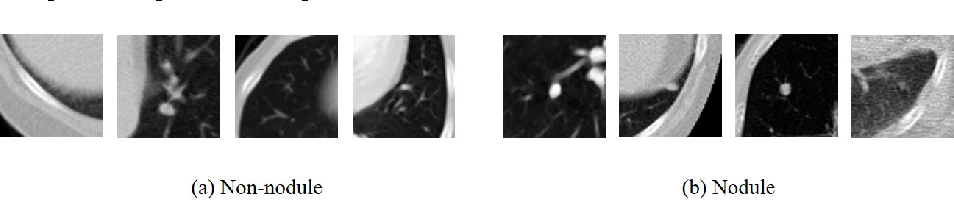 Figure 3 for Multi-stage Neural Networks with Single-sided Classifiers for False Positive Reduction and its Evaluation using Lung X-ray CT Images