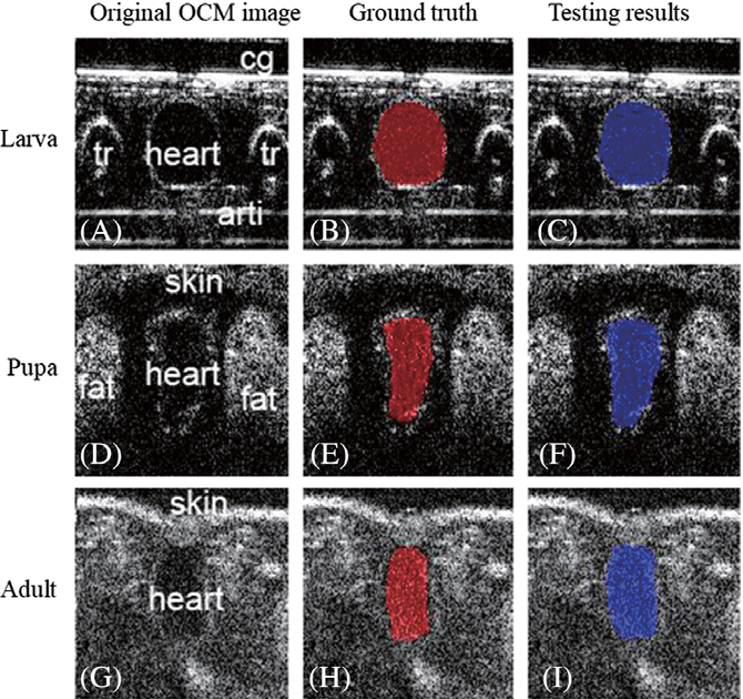 Figure 3 for Segmentation of Drosophila Heart in Optical Coherence Microscopy Images Using Convolutional Neural Networks