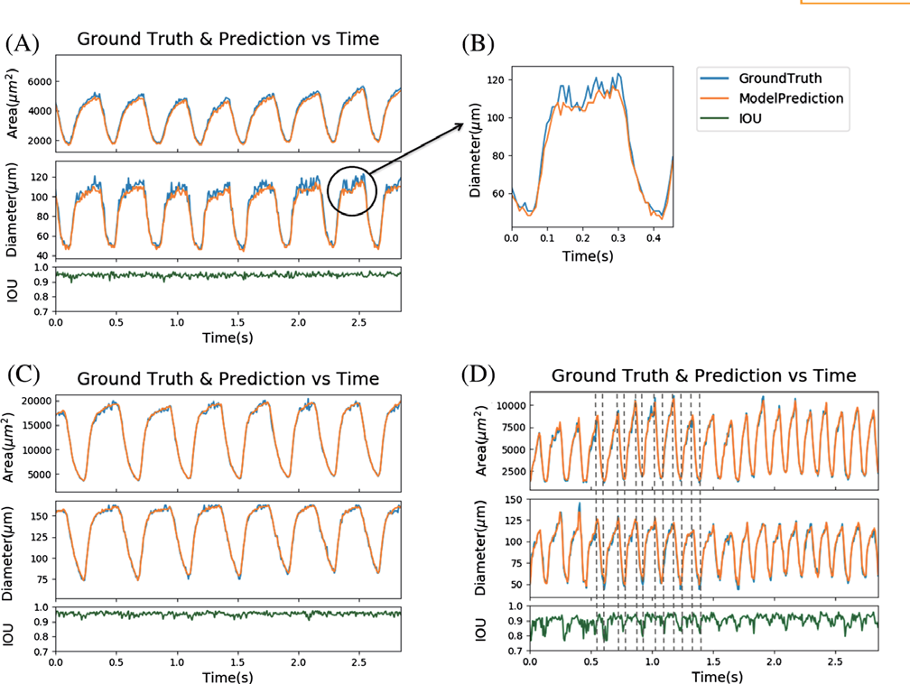 Figure 4 for Segmentation of Drosophila Heart in Optical Coherence Microscopy Images Using Convolutional Neural Networks