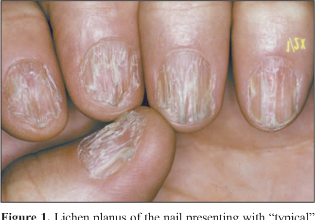 Figure 1 from Nail lichen planus: response to treatment and long ...
