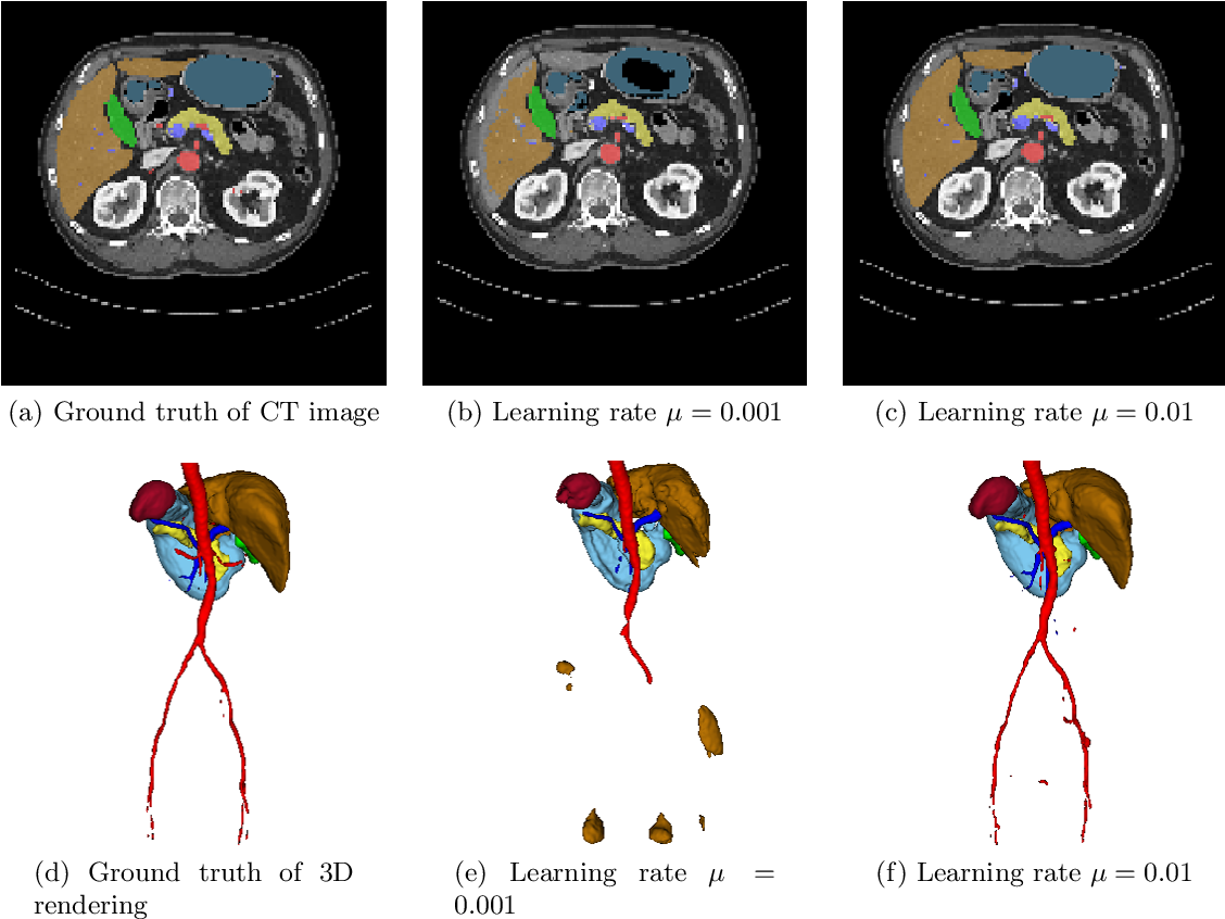 Figure 4 for On the influence of Dice loss function in multi-class organ segmentation of abdominal CT using 3D fully convolutional networks