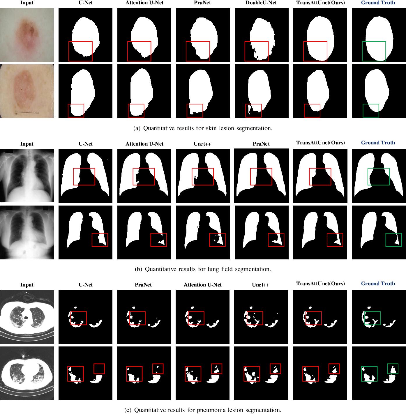Figure 4 for TransAttUnet: Multi-level Attention-guided U-Net with Transformer for Medical Image Segmentation
