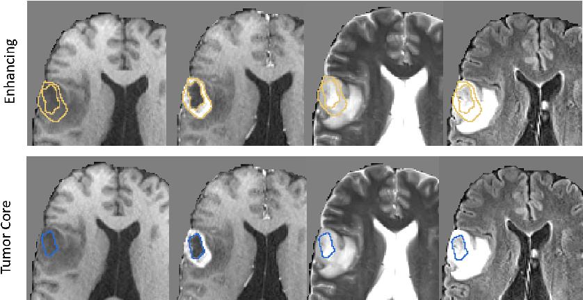 Figure 3 for Sequential 3D U-Nets for Biologically-Informed Brain Tumor Segmentation