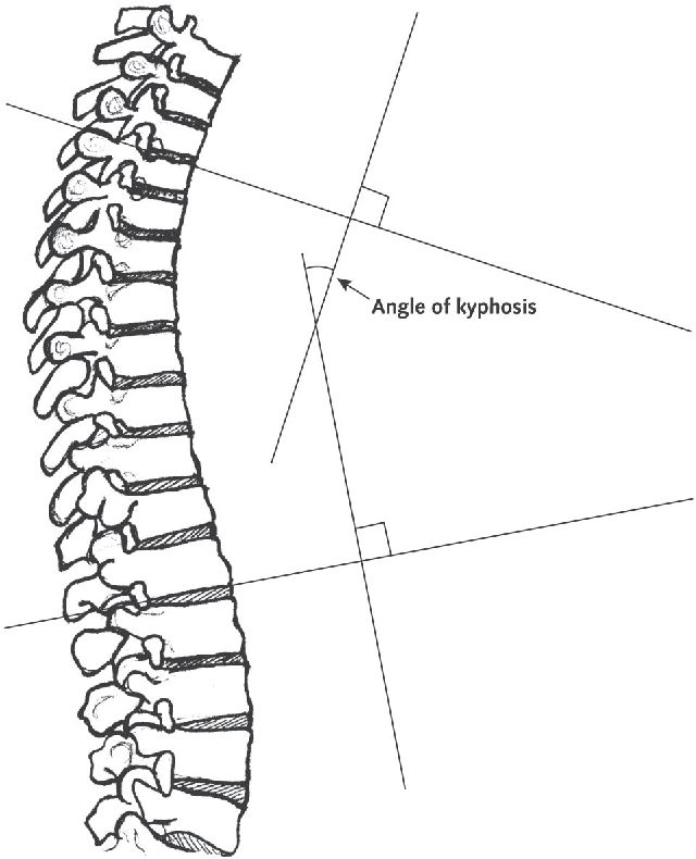 Figure 2 From Narrative Review Hyperkyphosis In Older Persons