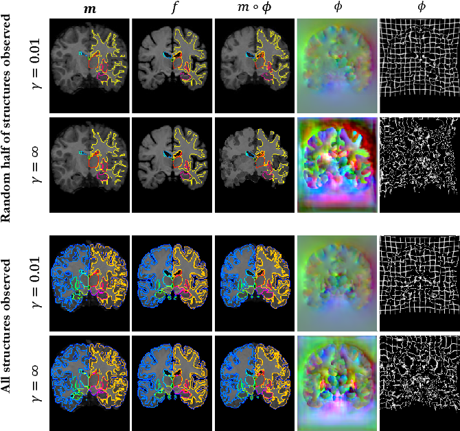 Figure 2 for VoxelMorph: A Learning Framework for Deformable Medical Image Registration
