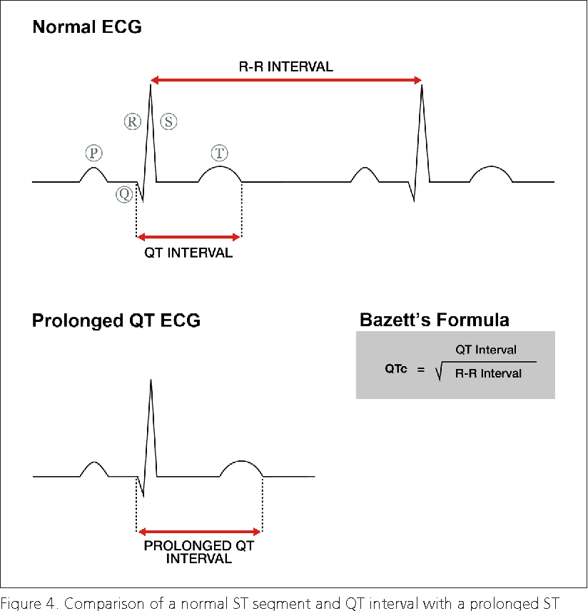 Figure 4 from ECG diagnosis: The effect of ionized serum