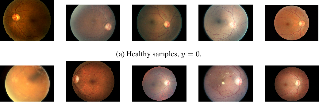 Figure 3 for A Systematic Comparison of Bayesian Deep Learning Robustness in Diabetic Retinopathy Tasks