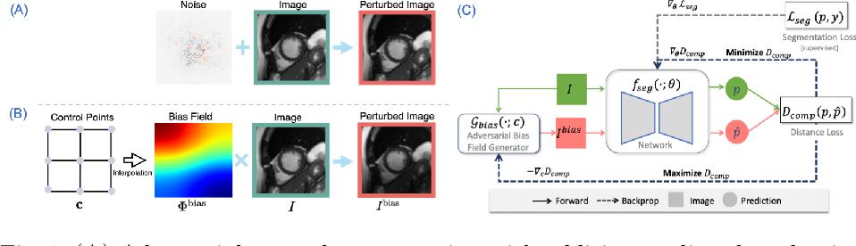 Figure 1 for Realistic Adversarial Data Augmentation for MR Image Segmentation