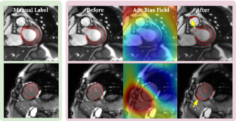 Figure 3 for Realistic Adversarial Data Augmentation for MR Image Segmentation
