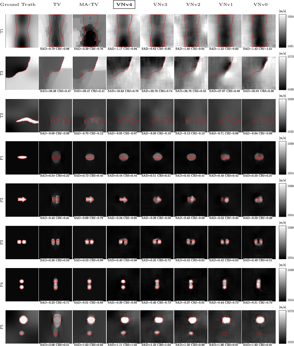Figure 2 for Image Reconstruction via Variational Network for Real-Time Hand-Held Sound-Speed Imaging