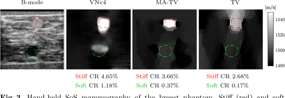 Figure 3 for Image Reconstruction via Variational Network for Real-Time Hand-Held Sound-Speed Imaging