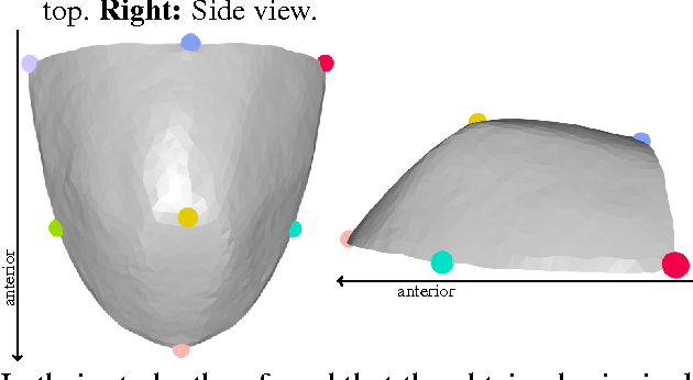 Figure 1 for A statistical shape space model of the palate surface trained on 3D MRI scans of the vocal tract