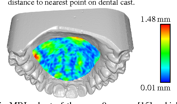 Figure 3 for A statistical shape space model of the palate surface trained on 3D MRI scans of the vocal tract