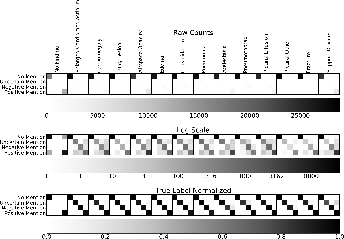 Figure 4 for CheXpert++: Approximating the CheXpert labeler for Speed,Differentiability, and Probabilistic Output