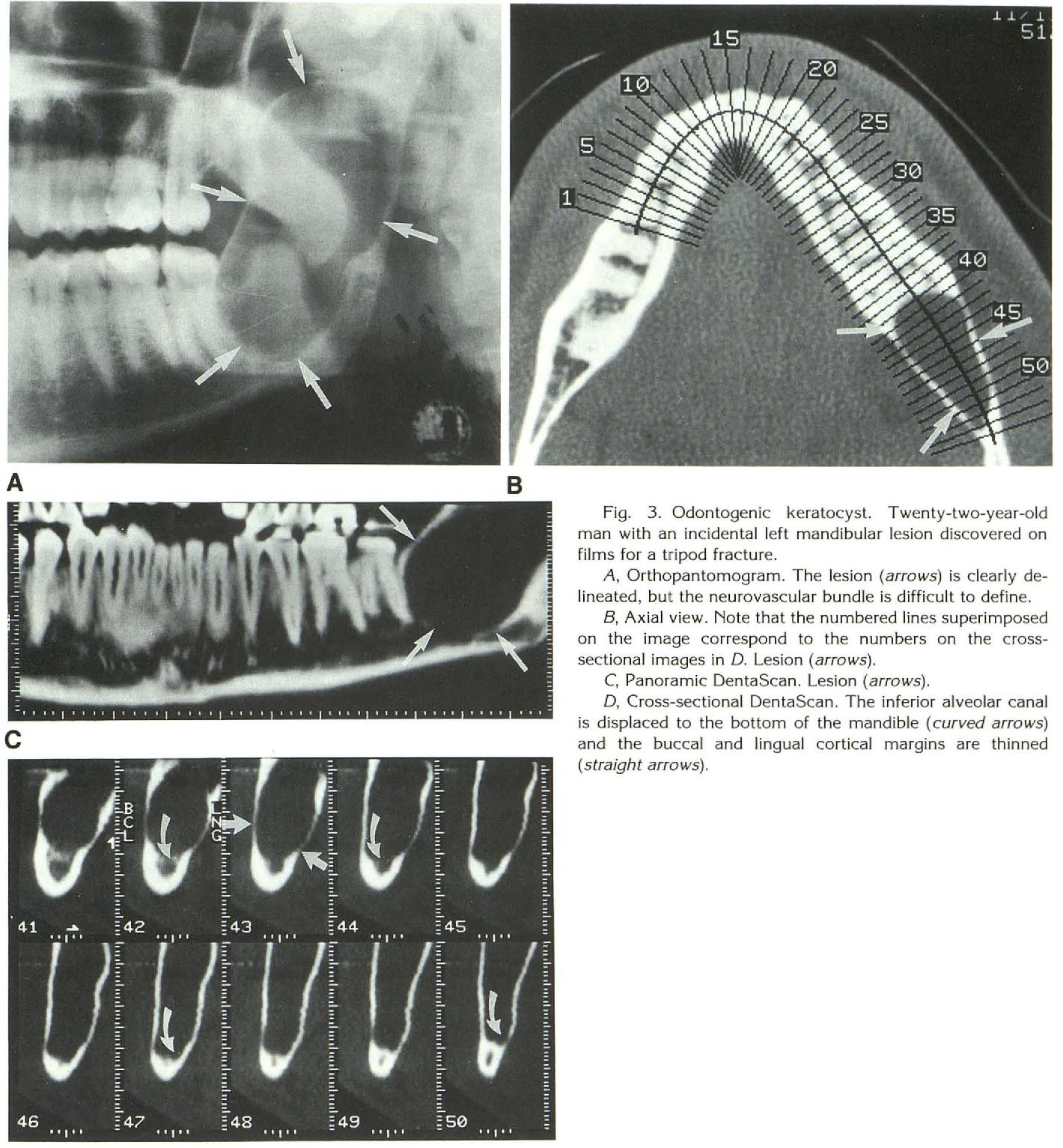 Großartig Halsmuskelanatomie Ct Galerie - Menschliche Anatomie ...