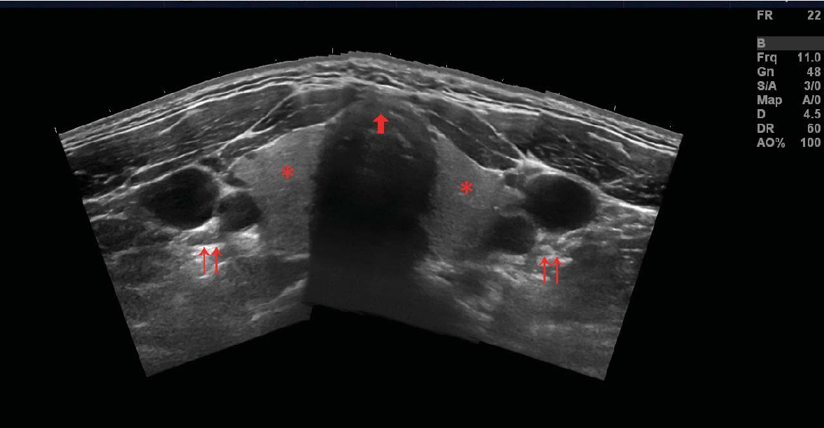 Figure 2: Panoramic transverse view. Asterisk = thyroid gland, double arrows = left and right carotid artery and jugular vein, single arrow = tracheal cartilage, ideal puncture site in the anterior midline.