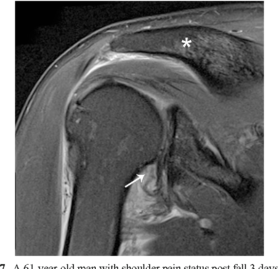 Figure 7 from Inferior glenohumeral ligament (IGHL) complex: anatomy ...