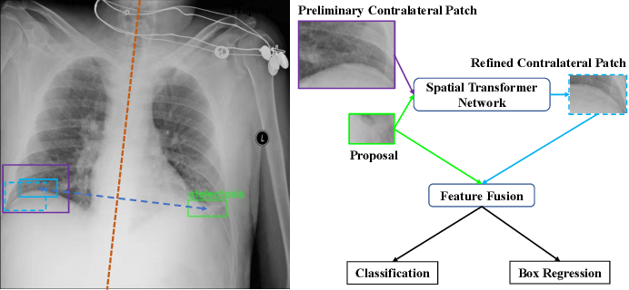 Figure 1 for Contralaterally Enhanced Networks for Thoracic Disease Detection