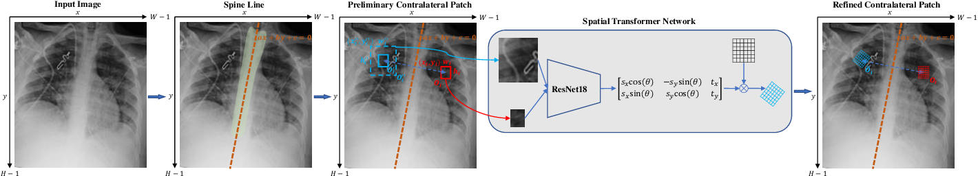 Figure 2 for Contralaterally Enhanced Networks for Thoracic Disease Detection
